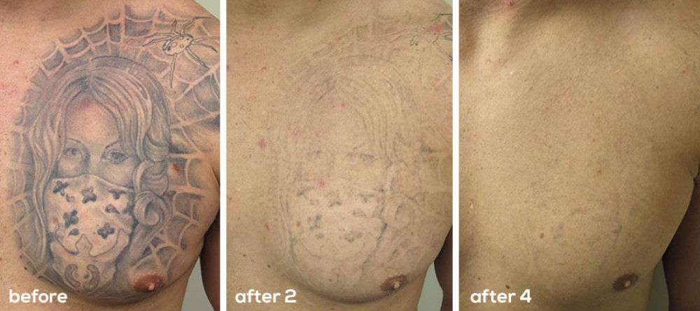 Laser tattoo removal the effective and safe way to get for Tattoo removal clinic
