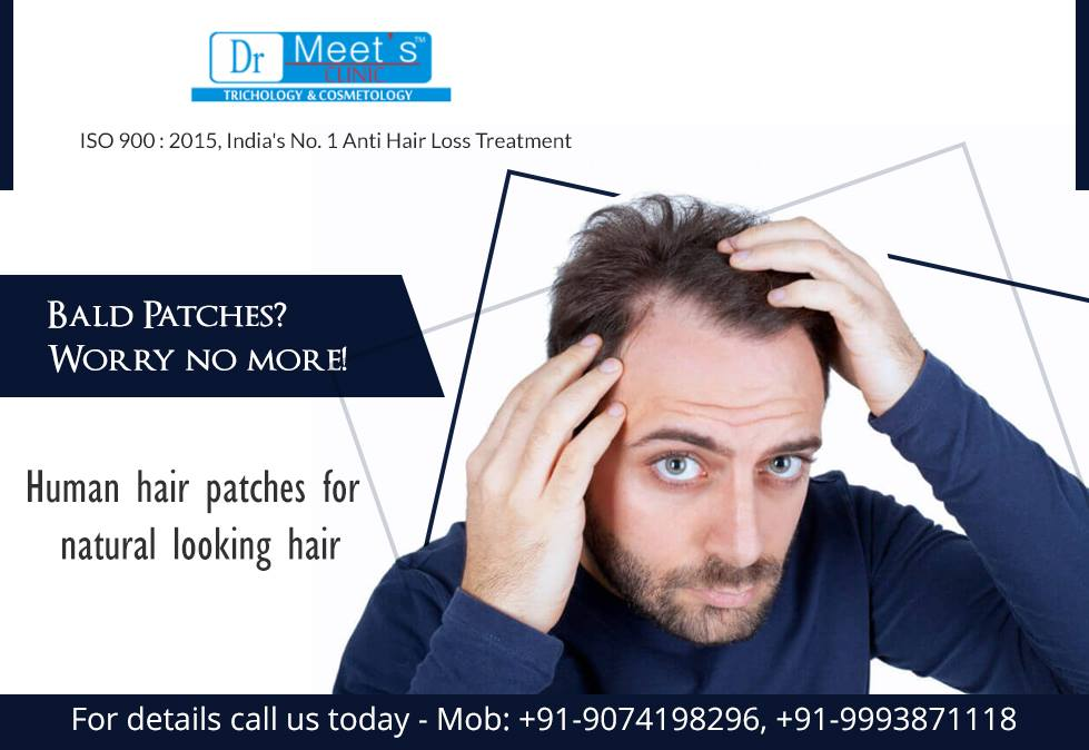Hair wigs shop in indore